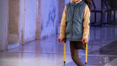 Photo of جانب من متابعة دخول ومعالجة عدد من الأطفال مبتوري الأطراف في تركيا